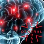 epilepsia-imagen