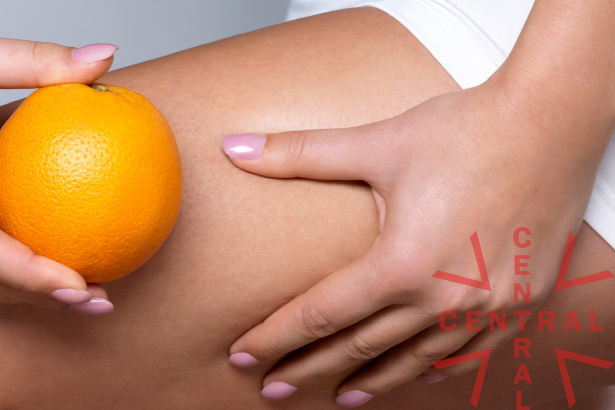 Imagen de celulitis o piel de naranja